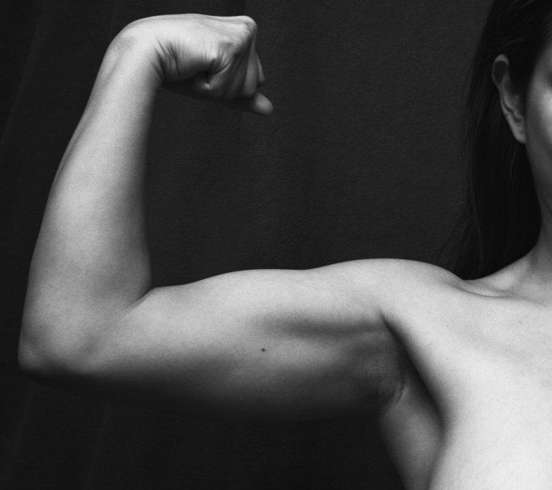 chirurgia estetica per rimuovere il grasso del braccio