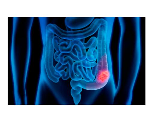 cancro del colon retto e aumento di peso
