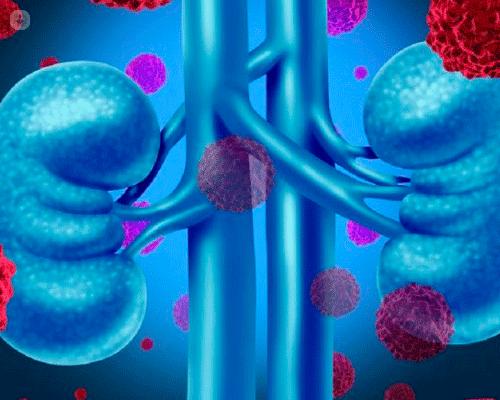 alimentazione per insufficienza renale grave