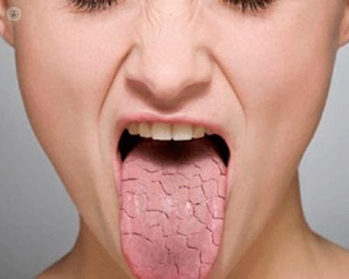 Sindrome (o morbo) di Sjögren: cause, sintomi, diagnosi e cura